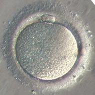 Ovocyte_II